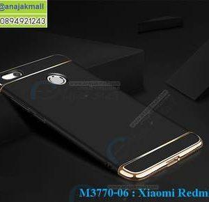 M3770-06 เคสประกบหัวท้าย Xiaomi Redmi 4X สีดำ
