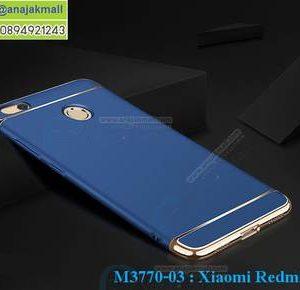M3770-03 เคสประกบหัวท้าย Xiaomi Redmi 4X สีน้ำเงิน