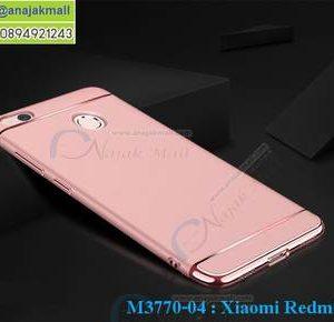 M3770-04 เคสประกบหัวท้าย Xiaomi Redmi 4X สีทองชมพู