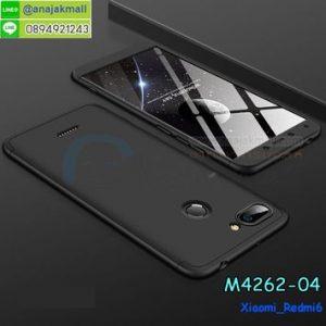 M4262-04 เคสประกบหัวท้ายไฮคลาส Xiaomi Redmi6 สีดำ